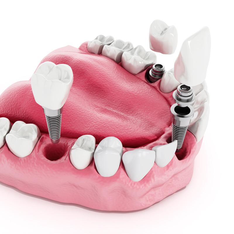 植牙的分類